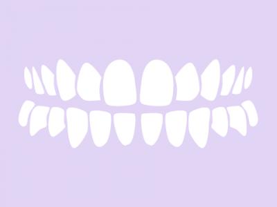 Dlanqueamiento dental con luz ultravioleta y con láser