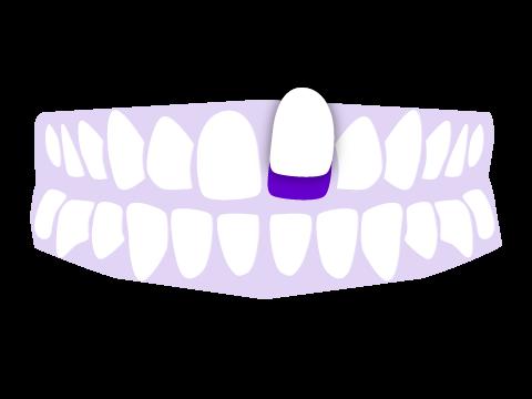Laminados estéticos dentales Donosti- San Sebastián