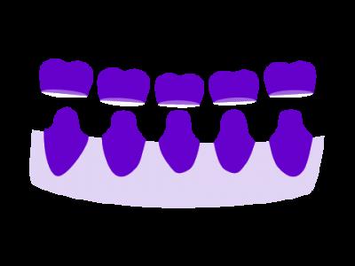 Prótesis dental fija y removible Donosti-San Sebastián